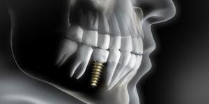 Implant basal